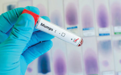 Mumps outbreak prompts vaccination reminder